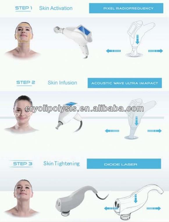 熱い販売の新しいピクセルrfフェイシャルレーザー治療機仕入れ・メーカー・工場