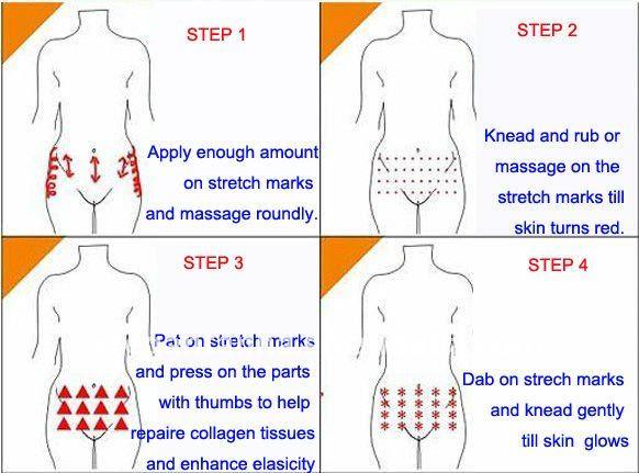 Stretch Mark Removal Oil Oil Stretch Marks