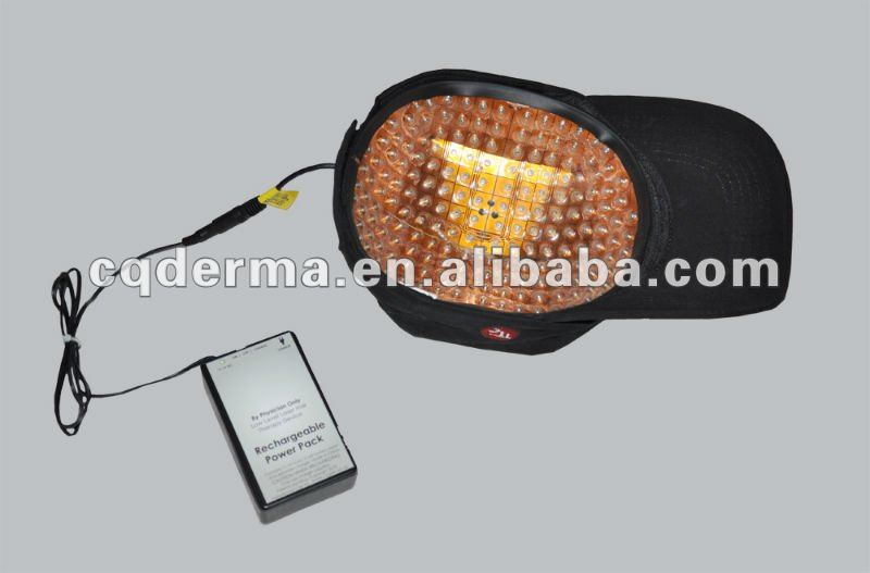 Bald Head Hair Growth laser cap - 650nm laser hair loss, Hair growth, Hair Loss, Hair Rejuvenation