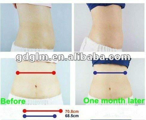 HOT! Super slim! lipo cryo fat freezing liposuction slimming equipment