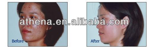 Les moyens clarifiant les taches de pigment