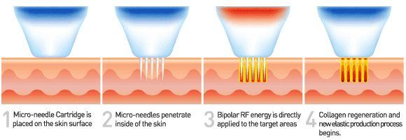 Micro-needle Fractional RF