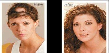 Остехондроз и выпадение волос