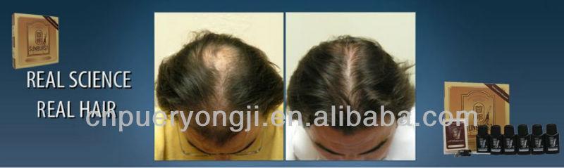 Top Quality Guaranteed Sunburst Hair Re-growth Solution 3+1 Anti Hair Loss Oil