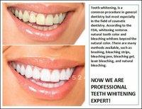 Средство для отбеливания зубов 5pcs/lot Teeth Whitening Pen Gel Bright White Smile Dental Care Kit Teeth Care Pan Keep Teeth Whitening