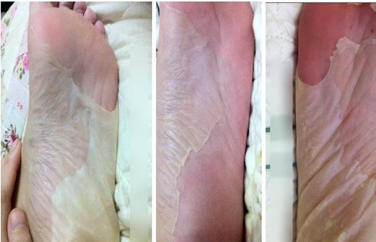 1Pair התינוק רגל פילינג לחידוש מסכה להסרת עור מת העור עקב טיפוח כף הרגל