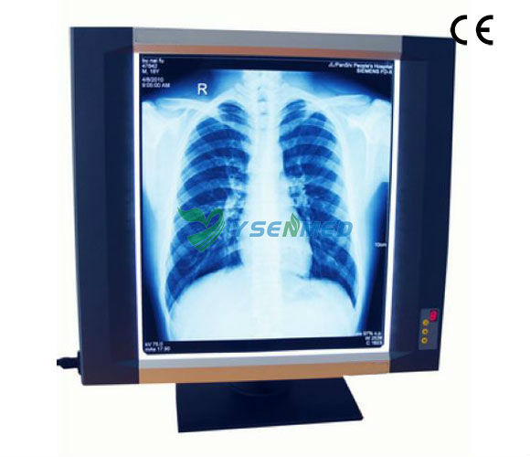 medical single connection led x ray film viewer