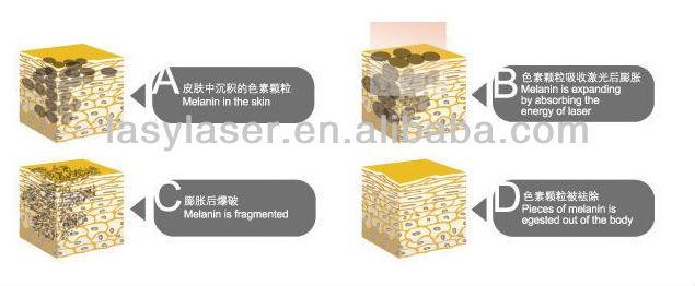 Comme enlever les traces des taches de pigment