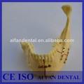 Dental aifan caliente de la venta de la mandíbula y los dientes de estudio dental modelo af-5001