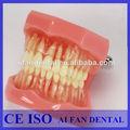 Dental aifan venta caliente dientes extraíbles modelo de estudio dental modelo af-7005