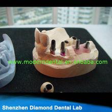 Implantes dentales coronas