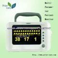 Dióxido de carbono monitor de paciente