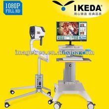 Ykd-3001 1080p hd digital colposcopio/colposcopio con cámara sd- almacenamiento/imágenes de la vagina