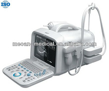 Guangdong Portable Ultrasound Scanner