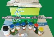 Chicken toxoplasma circulating antigen,TCA ELISA Kit