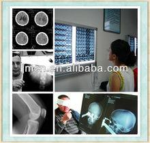 medical x ray film viewer,x-ray medical film processor,medical negatoscope film viewer