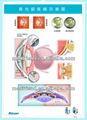 3d médical, tableau./affichagecalendrier-- le glaucome