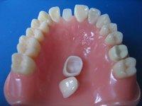 National Standard Zirconia porcelain denture / Crown in ceram crown