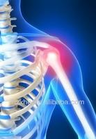 hyaluronic acid injection for osteoarthritis