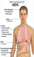 Hiv cure ayurvedic medicines