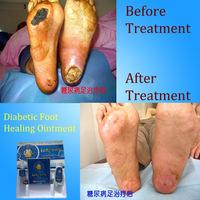 Tibetan herbal medicine for diabetic foot care Curing Diabetic Foot