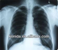 medical dry film provide free samples