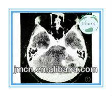 import medical equipment x ray film kodak medical equipment industry