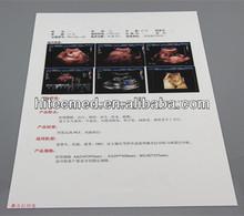 Medical X-ray Laser Film