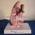 la anatomía modelo de pulmón