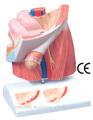 hernie inguinale