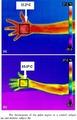 digital infravermelho termografia