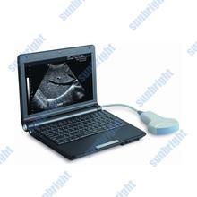 laptop ultrasound transducer