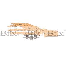 ortopédicos fijación externa de falange y metacarpus