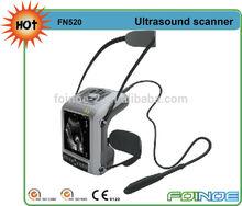 FN520 CE approved HOT selling full digital ge ultrasound scanner