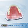 Dental removable acrylic partial denture supply