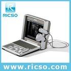 ultrasonic equipment & b/w portable full digital pregnancy ultrasound