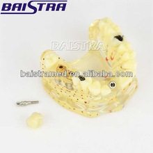 Baistra Dental supply High quality Dental Implant Teeth Model