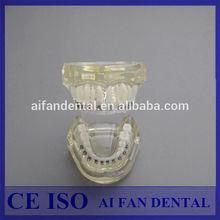 [ AiFan Dental ] New Dental Study Model Bracket Orthodontic Catface Standard Dental Tooth Model