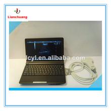 Humanized Laptop Full Digital vet digital ultrasound scanner for sale