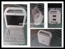Digital laptop/handheld ultrasound scanner (white body shell)