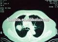 Agfa seco térmico films x-ray acessórios suprimentos médicos usado no hospital