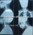 De imagem médica filme de raio, digital de raios-x de cr, suprimentos médicos utilizados no hospital