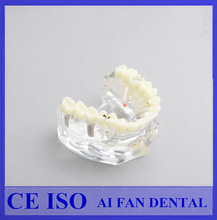 [ AiFan Dental ]High Quality AF-2006 Implant Bridge and Caries Typodont Dental Model With Removable Teeth