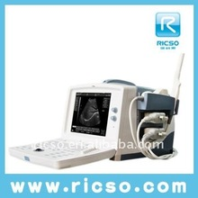 Full Digital Medical Portable B&W Dog Pregnant Ultrasound Scanner