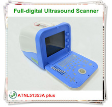 Hospital Full Digital Portable echo machine/ultrasound equipment