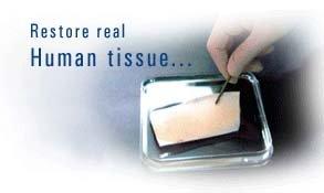 Surederm(Acellular human tissue)