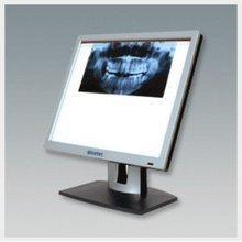 X-ray Film Viewer