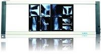 Slim LED X-ray Medical Film Viewer(Luminosity adjustable )