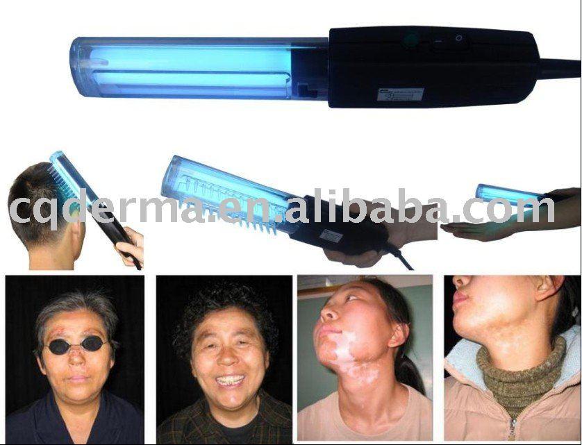 Psoriasis responds to ultraviolet (UV) light treatment 2