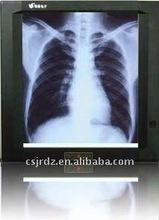 x-ray film illuminator